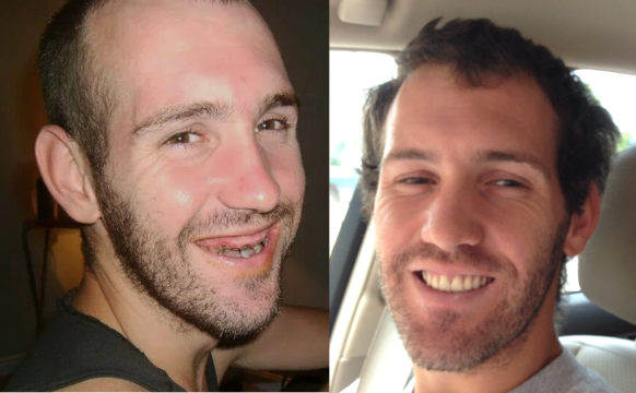 Chris Blanchard before and after